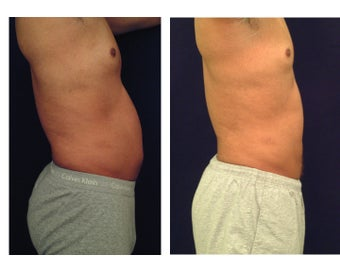 Liposuction 397015
