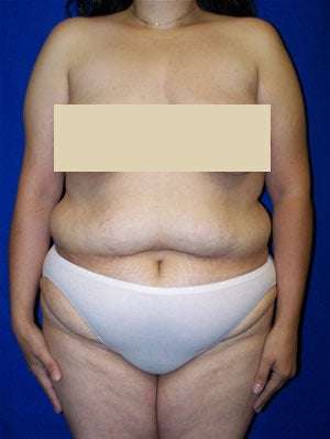 Extended Abdominoplasty Surgery before 98496