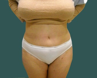 Extended abdominoplasty after 561153