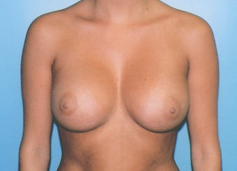 Breast Augmentation - Small B Cup to Small D Cup after 297500