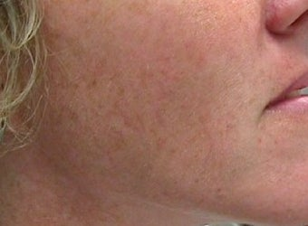 Photofacial Laser Treatment before 374393