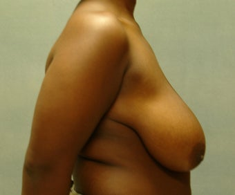 Breast Reduction before 221287