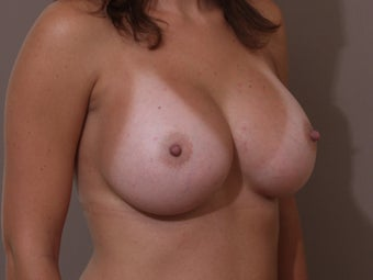Silicone Breast Augmentation/ Breast Implants 514906