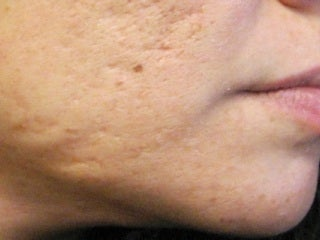 Severe, Deep Acne Scars with Punch Elevation before 272019