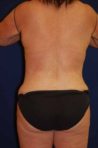 Back / Waist Liposuction after 513396