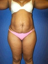 Tummy Tuck (Abdominoplasty) before 428737