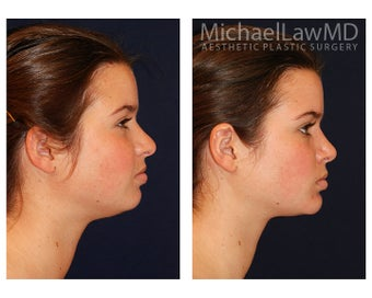 Chin Liposuction 395814