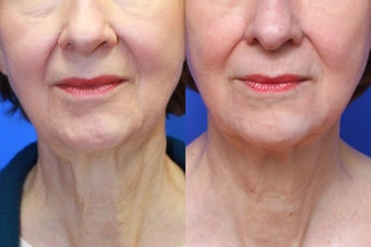 Exilis Skin Tightening before 619571