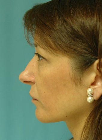 Rhinoplasty, Blepharoplasty before 125626