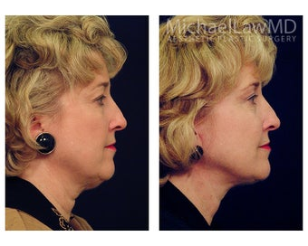 Facial Rejuvenation - Neck Lift 395191