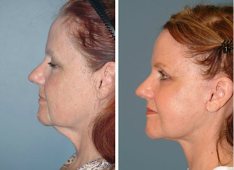 Neck Lift before 575391