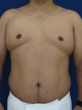 Vaser Hi-Def Liposuction of abdomen, chest, back and flanks before 422693