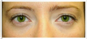 Lower Eyelid Surgery after 526491