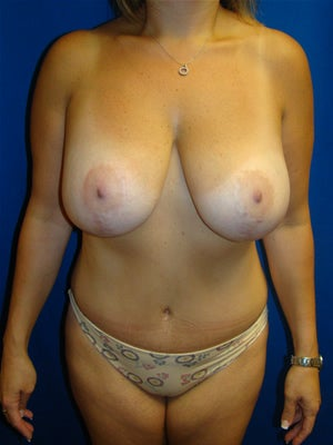 Tummy Tuck, Breast Lift, Breast Augmentation Surgery