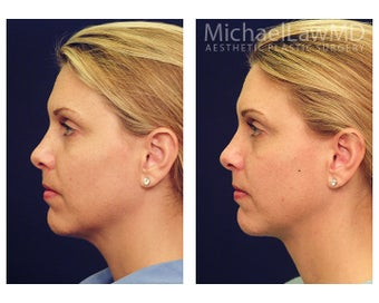 Chin Liposuction after 395819