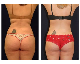 Liposuction before 286759