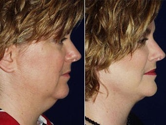 Liposuction of double chin and facelift before 6804