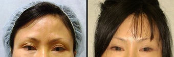 Endoscopic Brow Lift before 649406
