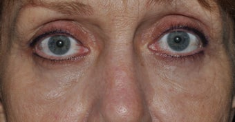 Bilateral upper and lower blepharoplasty, and 4 lid permanent eyeliner after 277496