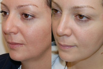 Rhinoplasty 7 months post-op. 3/4 view before 140301