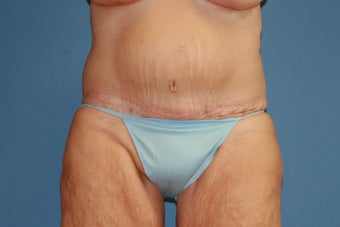 Abdominoplasty after massive weight loss after 91275