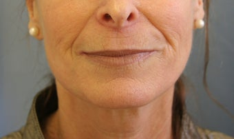 Juvederm injection before 343529