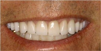 Porcelain Veneers after 112067