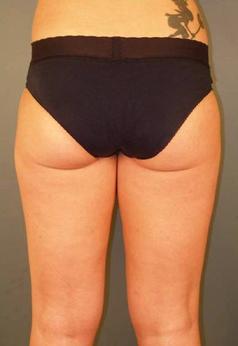 Tumescent Liposuction Under Local Anesthesia. after 331479