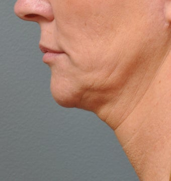 Ulthera Laser Skin Tightening before 346280