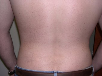 Liposuction 340028