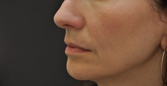 Juvederm Ultra after 194332
