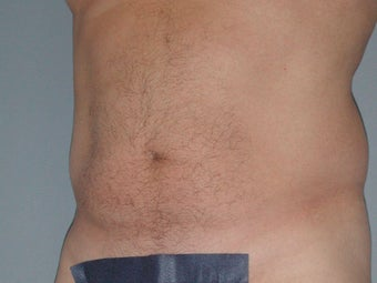 Liposuction 581438