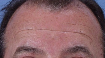 Botox to forehead before 240866