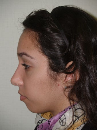 Rhinoplasty-  external approach after 174850