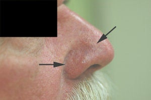 Vein removal on the nose with laser treatments after 106549