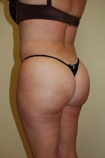 Buttock Augmentation after 516167