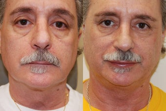 Lip Augmentation with Silikon-1000 for permanent results. before 378248