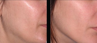 Ultherapy before 460625