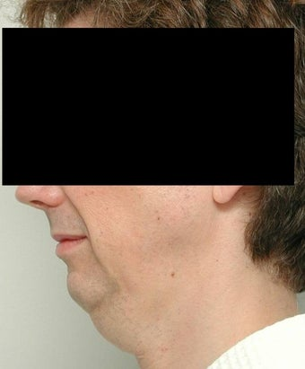 Neck Lift and Chin Implant before 106455