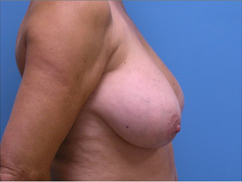 Breast Implant Removal  310520
