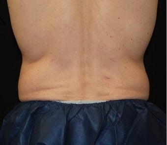 CoolSculpting on love handle and flank areas before 482900