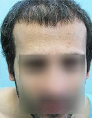 FUE – BHT by SFET Using Nape, Beard and Chest Hair Only before 196037
