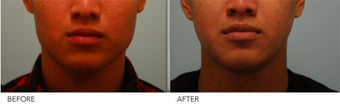Botox Jaw Reduction before 375286