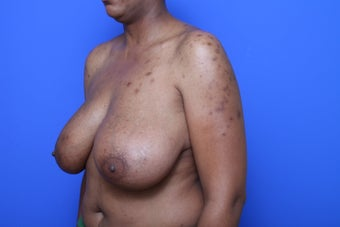 Breast Reduction before 621912