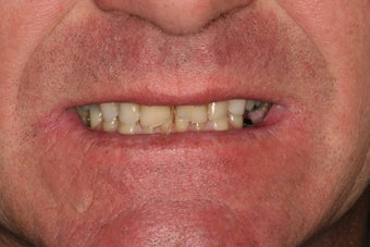 Anterior all-ceramic crowns and veneers