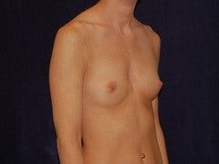 Breast Augmentation before 315698