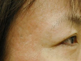 Acne Scars after 200602