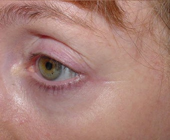 Affirm treatment of eye area wrinkles (crowsfeet) after 109815