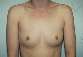 Breast Augmentation before 266783