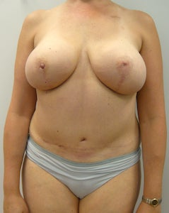 DIEP Flap Breast Reconstruction - Bilateral after 295193